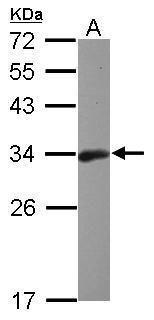 Bcl-10 Antibody (PA5-34800) in Western Blot