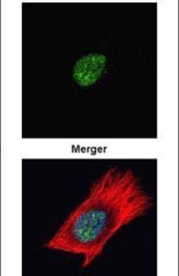 PARP Antibody (PA5-34802)