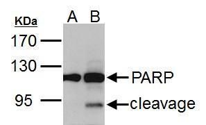 PARP Antibody (PA5-34803) in Western Blot