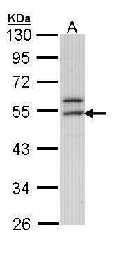 ERG Antibody (PA5-34810) in Western Blot