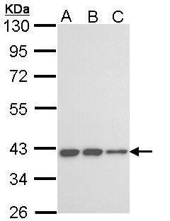 KIR3DL2 Antibody (PA5-34816) in Western Blot
