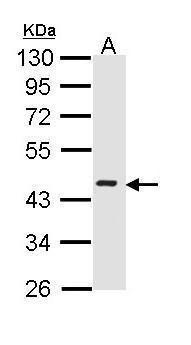 ICAD Antibody (PA5-34818) in Western Blot