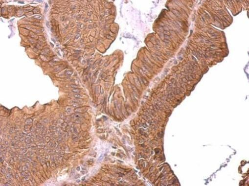ROBO1 Antibody (PA5-34822) in Immunohistochemistry (Paraffin)
