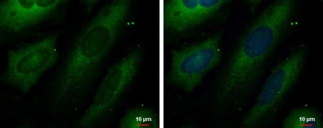 UNG Antibody (PA5-34823)