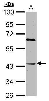 DAPK2 Antibody (PA5-34824)