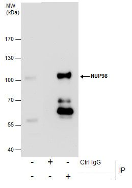 NUP98 Antibody (PA5-34826) in Immunoprecipitation