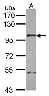 NUP98 Antibody (PA5-34826)