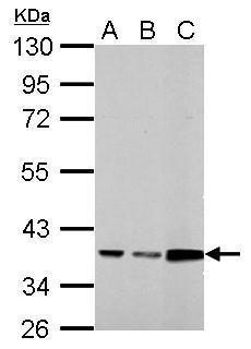Annexin A3 Antibody (PA5-34829) in Western Blot