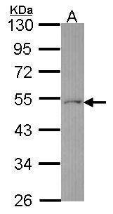 FDXR Antibody (PA5-34833)