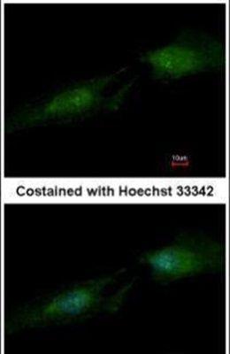 SMS Antibody (PA5-34839) in Immunofluorescence