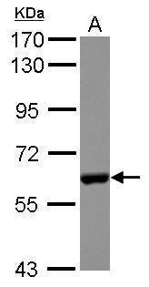 CES2 Antibody (PA5-34842) in Western Blot