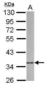 p41-ARCb Antibody (PA5-34845) in Western Blot
