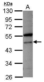 VPS4A Antibody (PA5-34846) in Western Blot