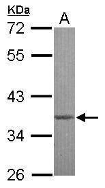 MBD3 Antibody (PA5-34851)