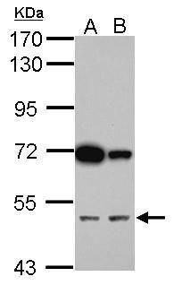 CUG-BP2 Antibody (PA5-34856) in Western Blot