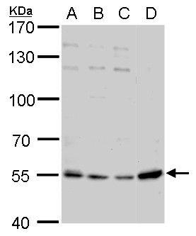 NAMPT Antibody (PA5-34858)