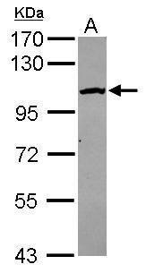 CPSF2 Antibody (PA5-34862) in Western Blot