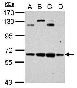 CESK1 Antibody (PA5-34863) in Western Blot
