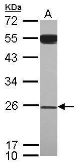 GAS41 Antibody (PA5-34867) in Western Blot