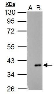 ARPC1A Antibody (PA5-34870) in Western Blot