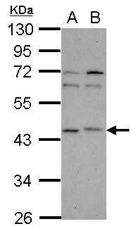 p40 Antibody (PA5-34872) in Western Blot