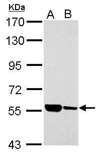 ILVBL Antibody (PA5-34880) in Western Blot