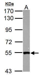 SMYD1 Antibody (PA5-34892) in Western Blot