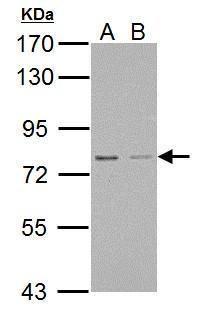 RED Antibody (PA5-34897) in Western Blot