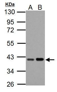 PECI Antibody (PA5-34898) in Western Blot