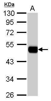 ALDH1A1 Antibody (PA5-34901) in Western Blot