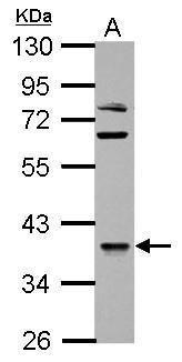 OXSM Antibody (PA5-34902) in Western Blot