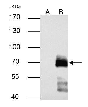 Paxillin Antibody (PA5-34910) in Immunoprecipitation