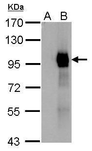 Paxillin Antibody (PA5-34910) in Western Blot