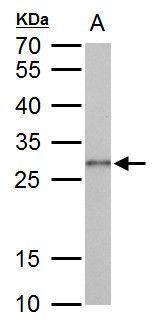 Galectin 3 Antibody (PA5-34912) in Western Blot