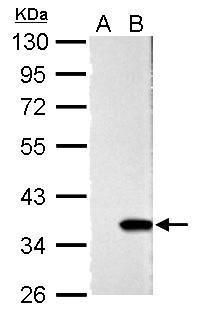 Galectin 4 Antibody (PA5-34913) in Western Blot