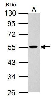 RAD26L Antibody (PA5-34915) in Western Blot