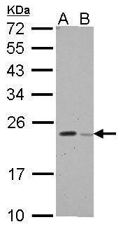 GPX8 Antibody (PA5-34917) in Western Blot