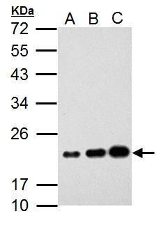 AID Antibody (PA5-34918) in Western Blot