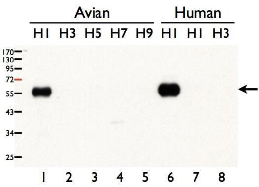 Influenza A H1N1 HA Antibody (PA5-34919) in Western Blot