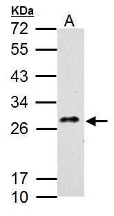 CLEC5A Antibody (PA5-34928) in Western Blot