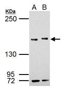 SETD2 Antibody (PA5-34934) in Western Blot