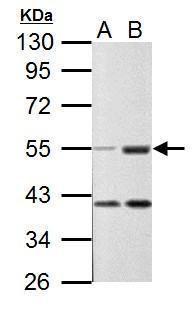 C9orf72 Antibody (PA5-34936) in Western Blot