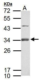 RSPO1 Antibody (PA5-34937) in Western Blot