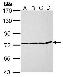 PAK6 Antibody (PA5-34938) in Western Blot