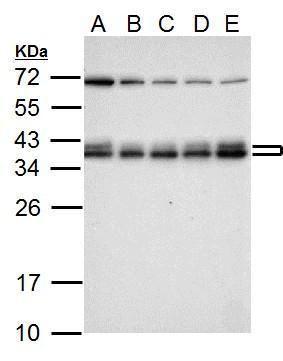 hnRNP A2B1 Antibody (PA5-34939) in Western Blot