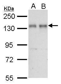 NFATC2 Antibody (PA5-34940) in Western Blot