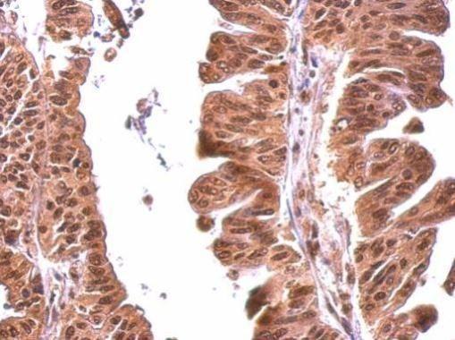 MOK Antibody (PA5-34942) in Immunohistochemistry (Paraffin)