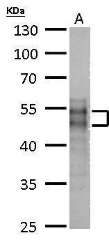 MOK Antibody (PA5-34942) in Western Blot