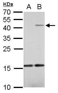 IL-22 Antibody (PA5-34944) in Western Blot