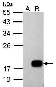 DCTD Antibody (PA5-34947) in Western Blot